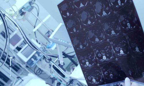 North America Medical Image Analysis Software Market