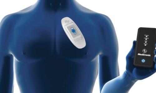 Mobile Cardiac Telemetry Devices Market