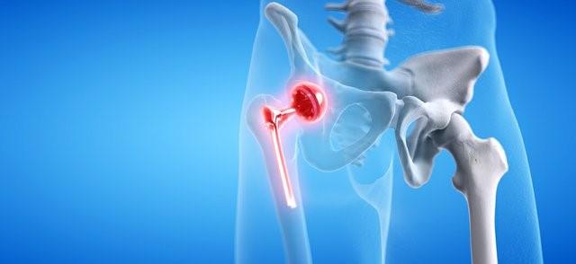 Medical Implants Market