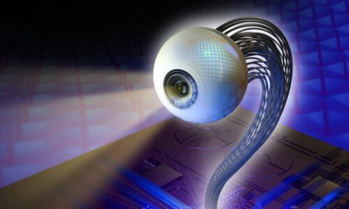Eye Socket Implant Market
