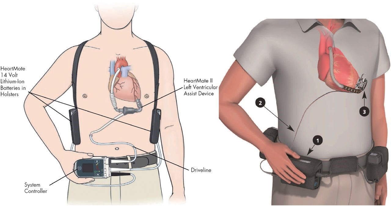 Ventricular Assist Devices Market