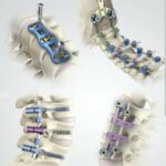 Spinal-Implant-and-Devices-Market
